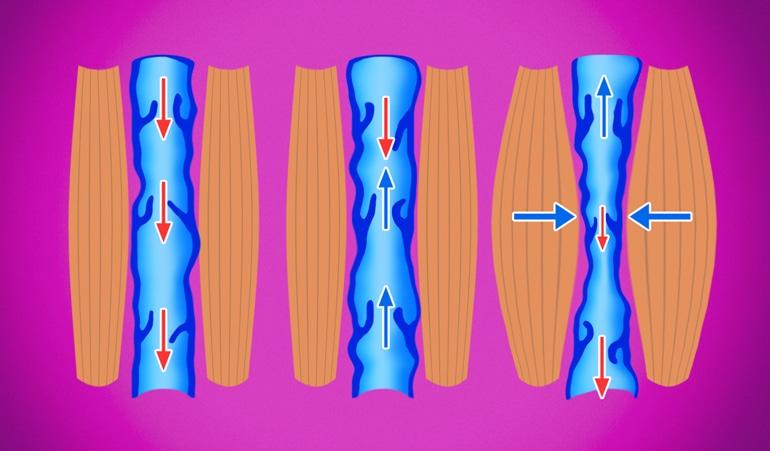 Slika venske insuficijencije koja pokazuje nenormalnu vensku kompresiju i gubitak elastičnosti koja sprečava normalnu cirkulaciju krvi